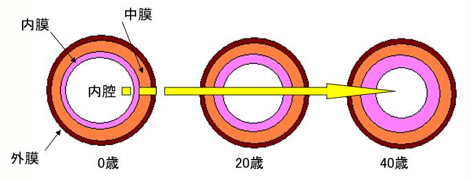 動脈硬化の進行イメージ